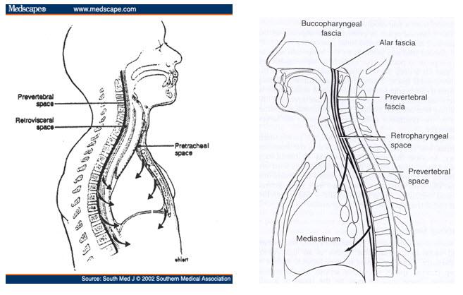 descending-gambar-rongga-tulang-2