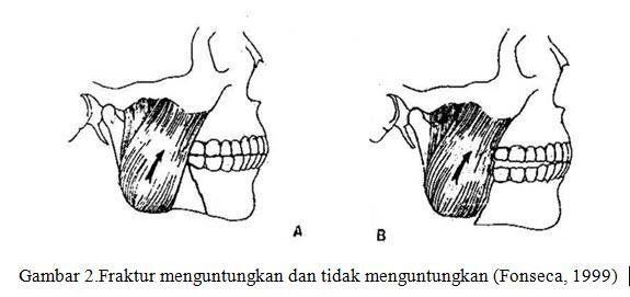 fraktur-mandibula-3-jpg