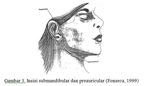 fraktur-mandibula-4-jpg
