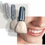 implan-gigi-murah-harga-depok-jpg