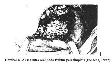 fraktur-mandibula-7-jpg