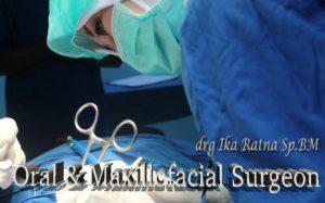 bagai-mana-cara-merawat-implant-gigi-apakah-sulit
